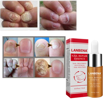 Nail Fungus Treatment  Onychomycosis Paronychia  Anti Fungal Nail Infection Good Result Chinese Herbal Toe Nail Treatment Онихомикоз