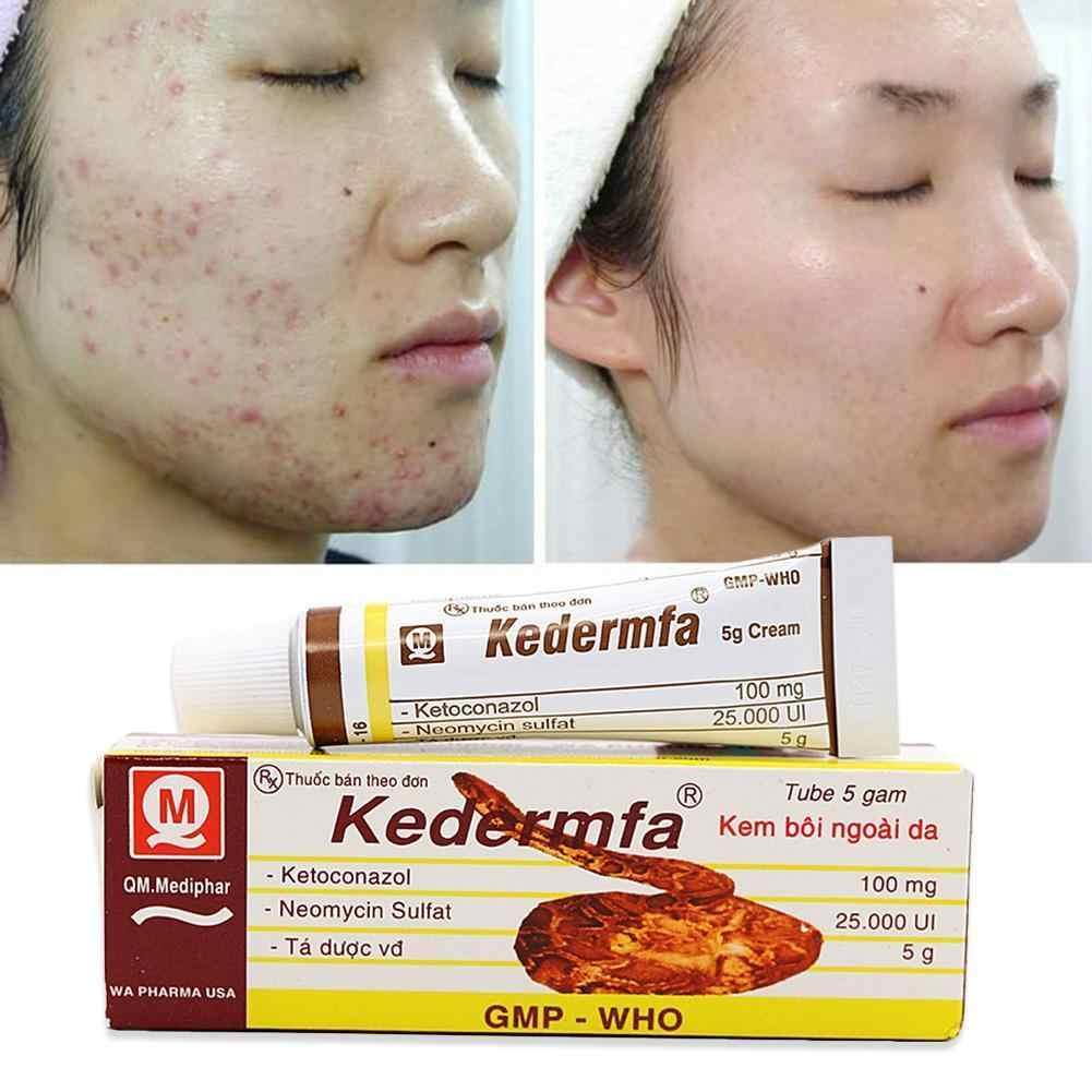 5g 100% Original huile de serpent main peau soins du visage crème serpent baume pommade jeune cicatrice rajeunissement brûlure crème Vietnam Kedermfa