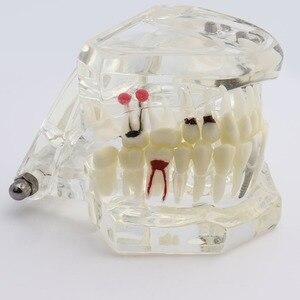 Image 4 - Dental Zähne Modell Implantat und Restaurierung Modell Transparent Studie Analyse Demonstration Zähne Modell Mit Restaurierung Brücke