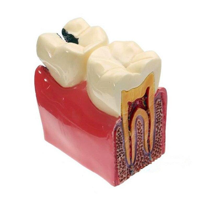 Modelo de Ensino Dental