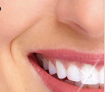 10 Pcs Baru Sementara Gigi Perhiasan Terbaik Austria Kristal Gigi Perhiasan Kristal Gadis Tubuh Perhiasan Berkilau 2 Mm hadiah