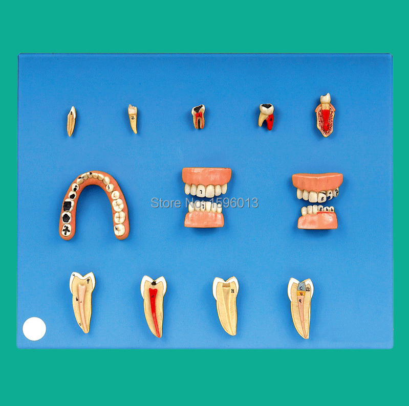 Dental Diseases Model, Dental lesions series model international diseases propedeutics textbook