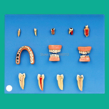 Dental Diseases Model, Lesions Series of Dental model