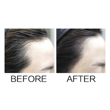 Sevich Hair Building Fibers Baby Hairline Modified Repair Hair