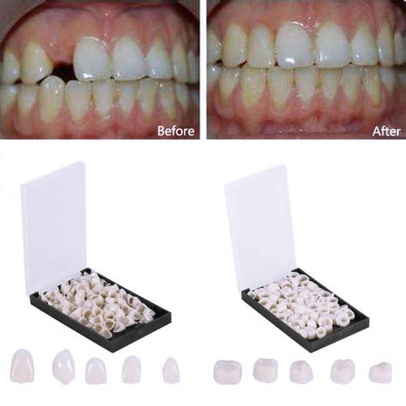 2019 New 50 Pcs Oral Healthcare Dentistry Dental Crowns Porcelain Temporary Posterior Anterior Teeth Crown Resin Tooth Whitening