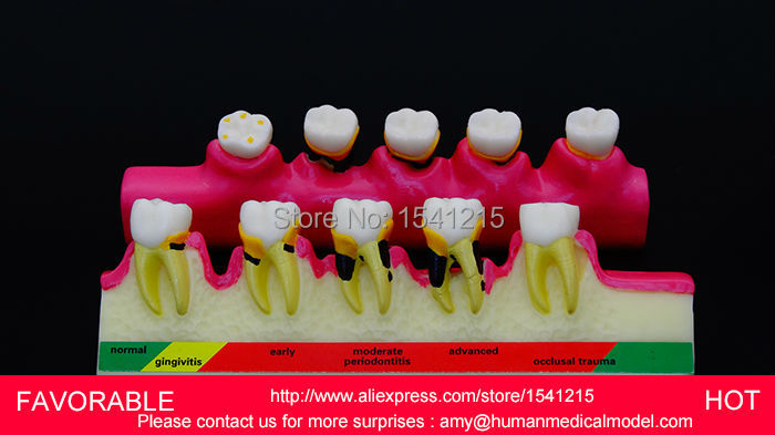 DENTAL PATHOLOGY MODEL ANATOMICAL MODEL TEETH MODEL DENTAL CARIES ,PERIODONTAL DISEASE DEMONSTRATION MODEL-GASEN-DEN050 resin oral periodontal disease classification model gingivitis degree chronic periodontitis model
