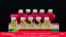 DENTAL PATHOLOGY MODEL ANATOMICAL MODEL TEETH MODEL DENTAL CARIES  ,PERIODONTAL DISEASE DEMONSTRATION MODEL-GASEN-DEN050