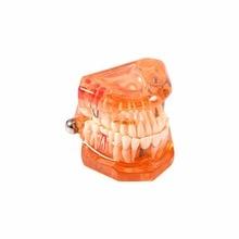 Orange Removable Dental Implant Disease Teeth Model Restoration Bridge Tooth Ideal for Medical Science Teaching