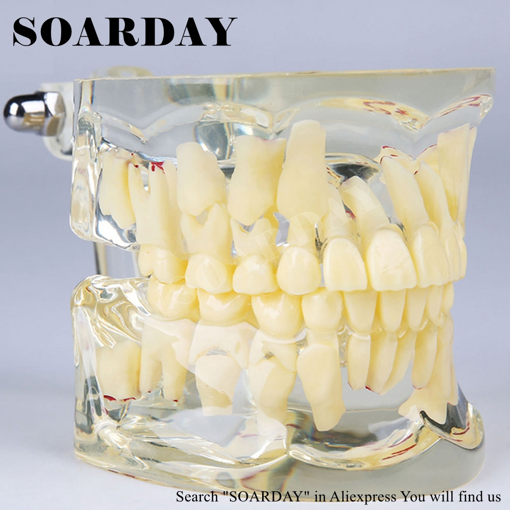 SOARDAY Children Primary Teeth Alternating Transparent Model Dental Root Clearly Displayed Dentist Patient Communication transparent dental orthodontic mallocclusion model with brackets archwire buccal tube tooth extraction for patient communication