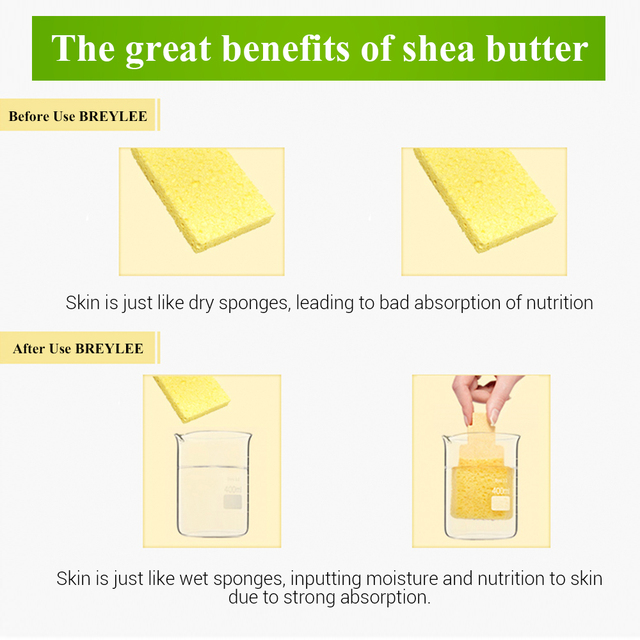 BREYLEE Face Cream Shea Butter Moisturizing Lotion Skin Care Anti Acne Treatment Facial Emulsion Easy To