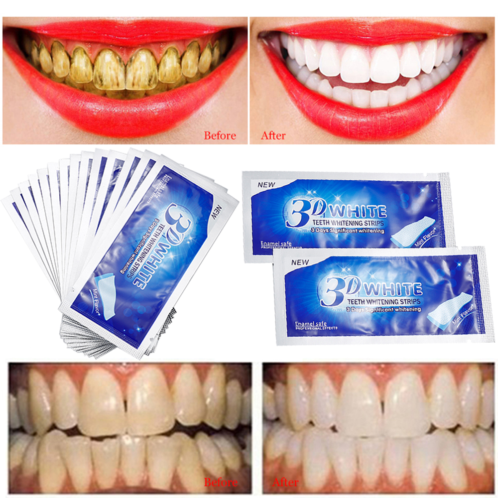 Top 10 Most Popular Whitener Care Dent Brands And Get Free
