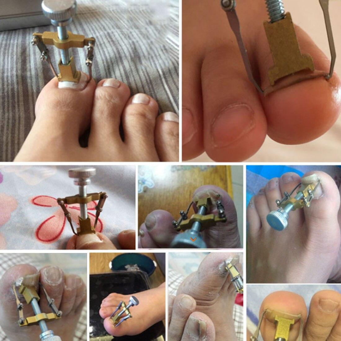 IngrownToe/Nail Correction Tool Fixer Recover/Curvy NailcurlerToe Paronychia /Nail Brace Tools Ingrown Toenails Pedicure Tool