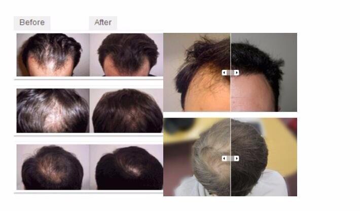 High Quality hair loss