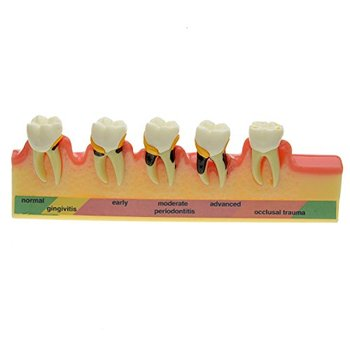 High Quality Dental Periodontal Disease Assort Tooth Typodont Model Free Shipping