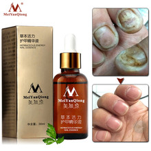 MeiYanQiong Nail Treatment Feet Care Essence Foot Whitening Toe Fungus Removal Gel Anti Infection Paronychia  30ml