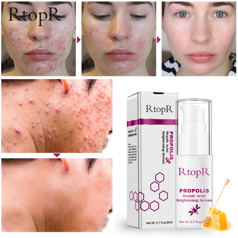 RtopR Propolis Repair Acne Brightening Serum Acne Scar Spots Cleaning Serum Shrink Pores Eliminates Treatment Oil Control TSLM1