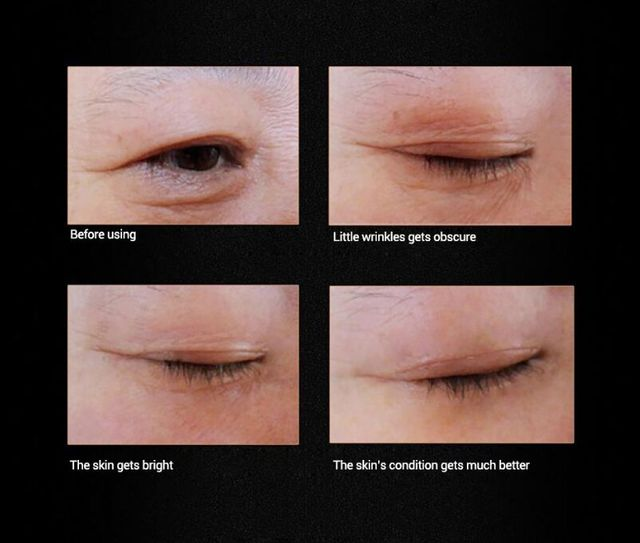 Instantly Ageless Anti Wrinkles Firming 10ml