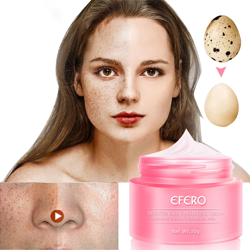 Hot 30g Remove Stain Face Freckles Cream Skin Whitening Cream Reduces Age Spots Fade Dark Spots Treatment
