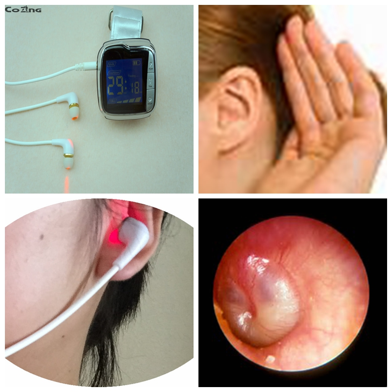 Otitis media reduce cholesterol apparatus laser therapy device  treat rhinitis  laser therapeutic apparatus to reduce the high cholesterol level