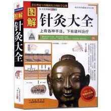 A acupuntura gráfica e moxibustion daquan medicina chinesa livros zhong yi zhen jiu língua em chinês para adulto