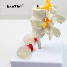 лучшая цена Lumbar Lesion Model Human Fourth and Fifth Lumbar Vertebrae Lumbar Lesion Model Medical Teaching Model