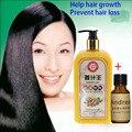 Jengibre profesional champú y acondicionador 300 ml, cabello Natural crecimiento rápido, más grueso, champú jengibre producto de la pérdida del