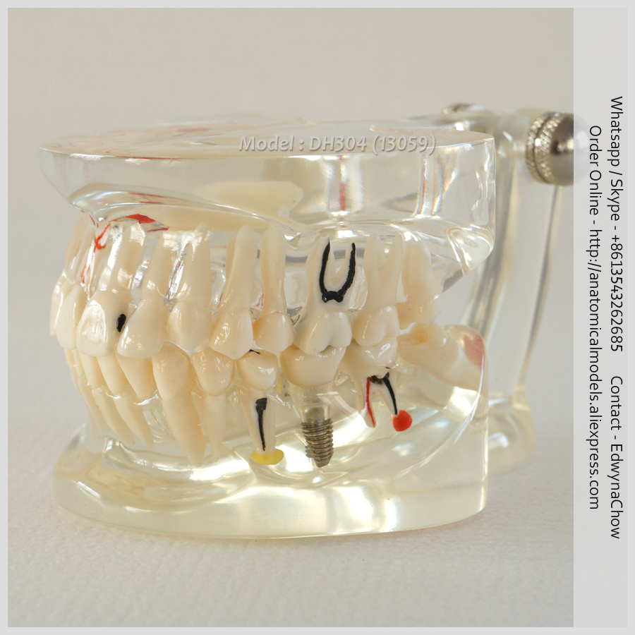 13059 DH304 Human Pathology Implant Dental Model, Medical Science Educational Teaching Anatomical Models