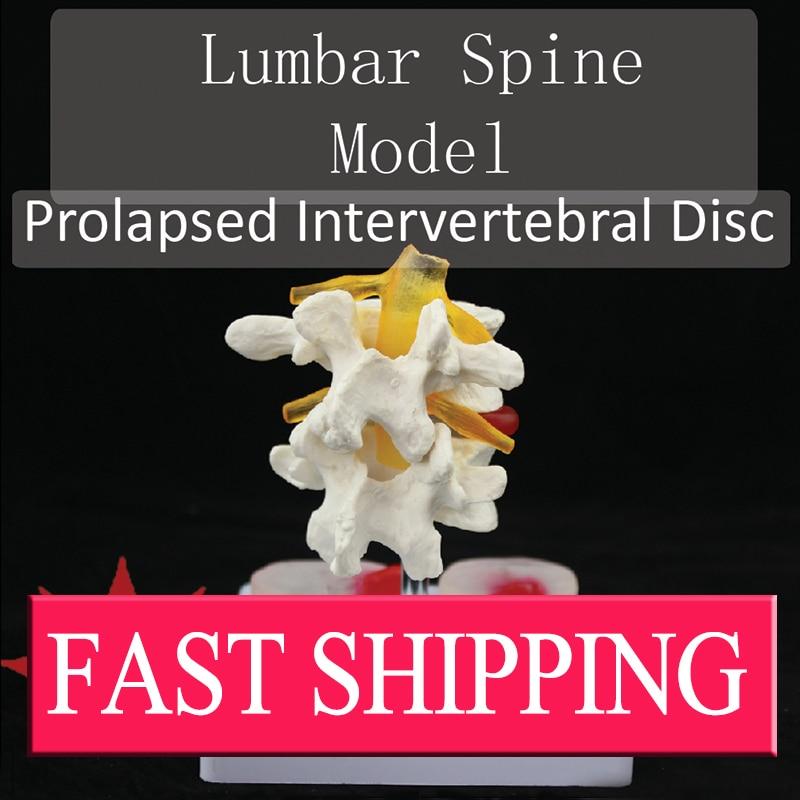 Advanced biological Lumbar vertebrae spine pathology model Prolapsed Intervertebral Disc model normal lumbar set lumbar vertebrae 2pcs 3pcs 4pcs bix a1010 wbw272