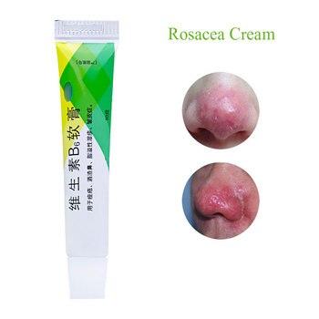 Anti Nose Mites Remove Acne Rosacea Cream Red Nose Blackhead Treatment Shrink Pores Homeopathic Medicated Sulfur Skin Redness