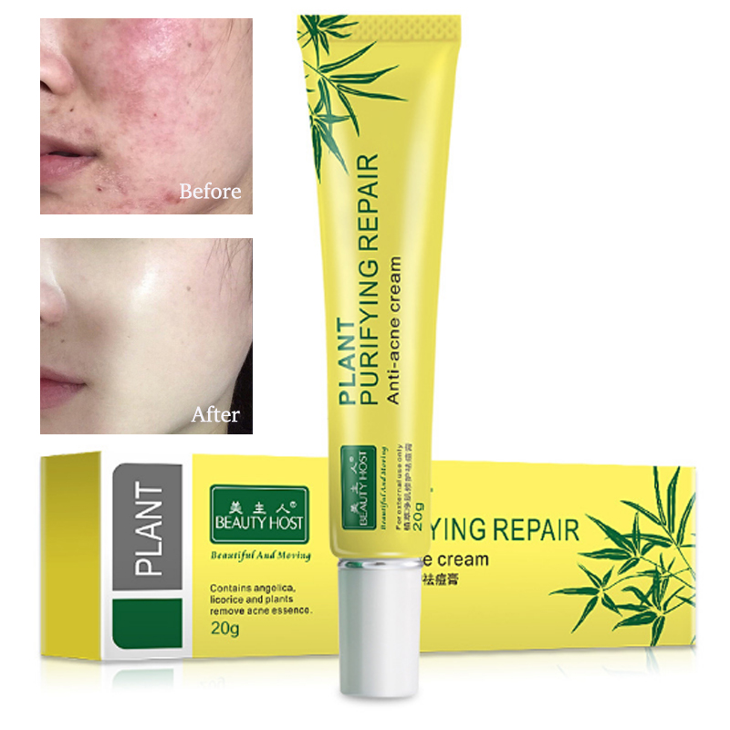 Face Acne Cream Acne Scar treatment Anti Acne Cleaning Pimple quickly Face Cream Acne Treatment Skin Care Facial Care Tools цена