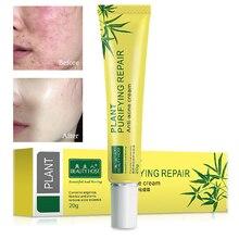 Face Acne Cream Acne Scar treatment Anti Acne Cleaning Pimpl