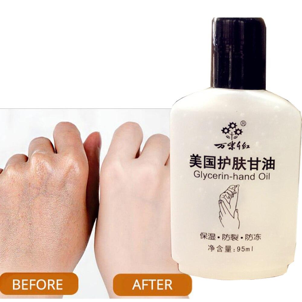 Hydration Skin Care: Aliexpress.com : Buy American Glycerol Moisturizing Body