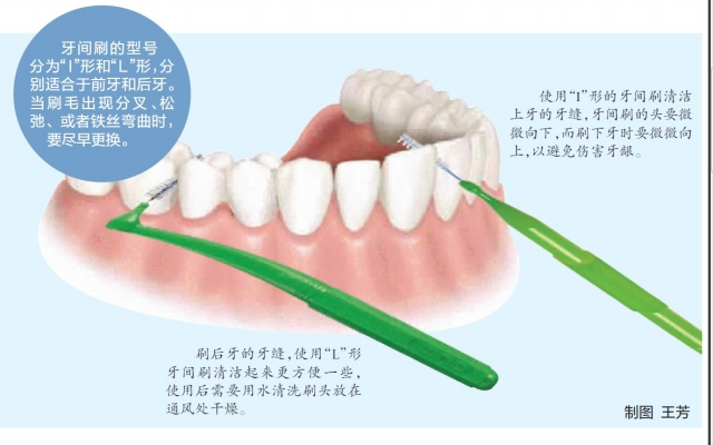 Interdental Brush δόντι Οδοντικό νήμα για - Στοματική υγιεινή - Φωτογραφία 5