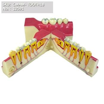 CMAM/12591 Dental- Tooth cross section, Human Oral Dental Medical Teaching Anatomical Model