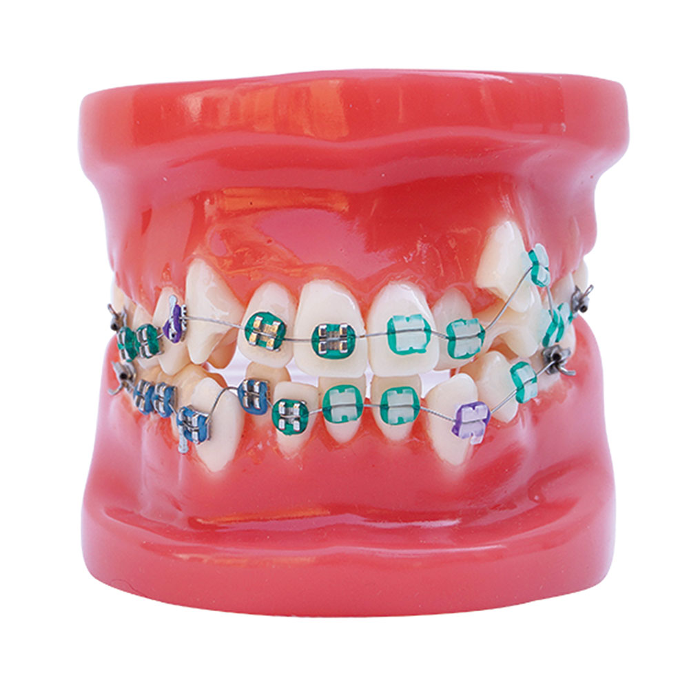 New Orthodontic Model 28 Unit Teeth With Half Metal Bracket and Half Ceramic for School Training 2016 dental orthodontics typodont teeth model half metal half ceramic brace typodont with arch wire