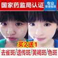 Whitening cream melasma age spots Blemish to genetic freckle freckle products