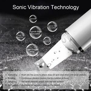Image 3 - ANLAN Ultrasonic Skin Scrubber for dropshipping customer