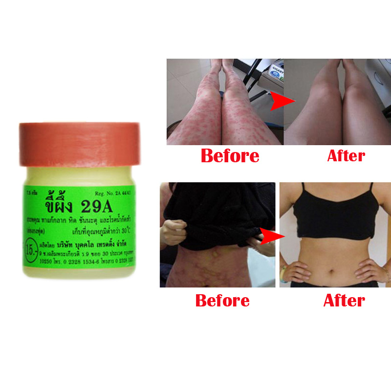 2PCS Profesprofessional Cure Psoriasis Ointment Original From Vietnam Native Medicine Ingredient Security