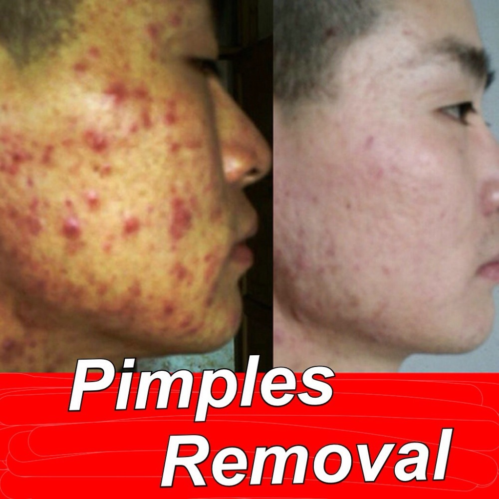 Chinese Medicine Pimple Pimples Removal Acne Blackheads Remove Cream High Quality Free Shipping high quantity medicine detection type blood and marrow test slides