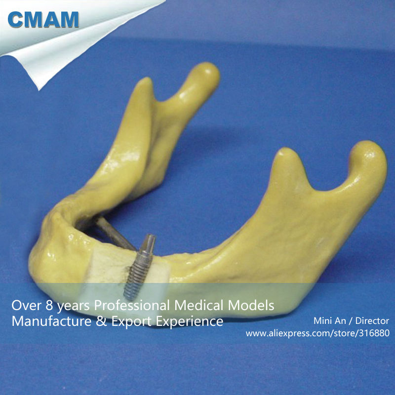 CMAM-IMPLANT03 Dental Teeth Implant Model of The Lower Jaw for Study and Teach 1 pcs dental standard teeth model teach study