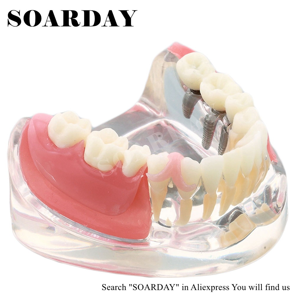 SOARDAY Implant & Restoration Model dental tooth teeth dentist dentistry anatomical anatomy model odontologia dh202 2 dentist education oral dental ortho metal and ceramic model china medical anatomical model