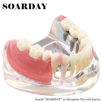 SOARDAY Implant & Restoration Model dental tooth teeth dentist dentistry anatomical anatomy model odontologia