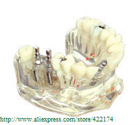 ФОТО Free Shipping Implant model with bridge and caries for dentist communication dental tooth teeth dentist anatomical anatomy model