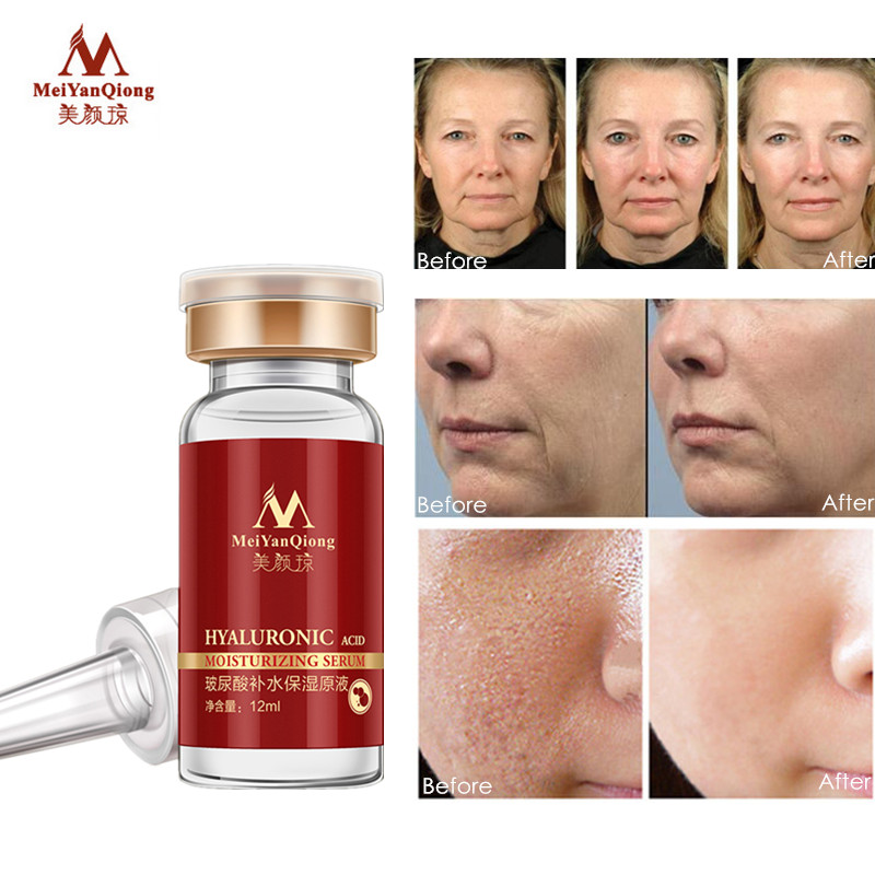 Hyaluronic Acid Face Serum Skin Care Essence Shrink Pore Moisturizing Repair Whitening Anti-aging Dry Face Cream