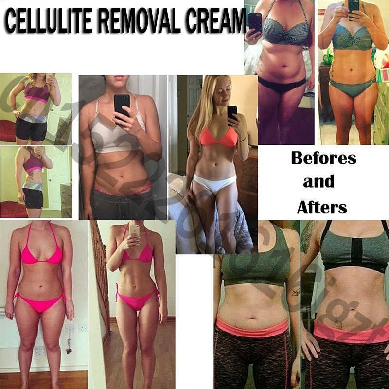Afslanken Cellulitis Verwijdering Crème Vet Brander Gewichtsverlies Afslanken Crèmes Been Body Taille Effectieve Anti Cellulite Vetverbranding