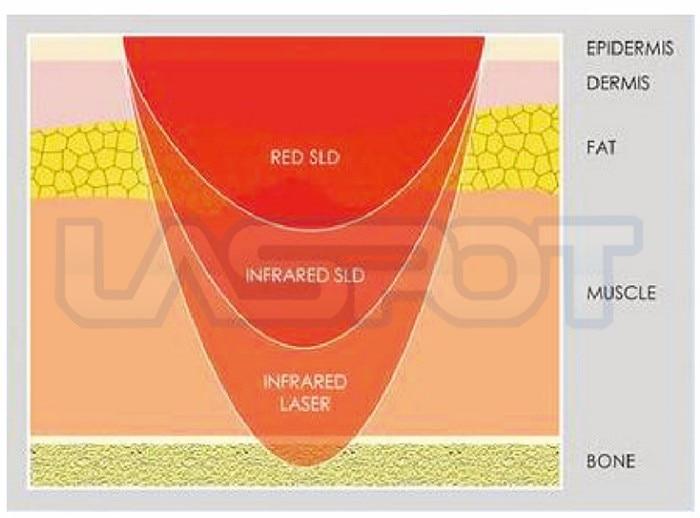 LASPOT laser light pain relief 650nm 808nm laser irradiation machine GD P 1