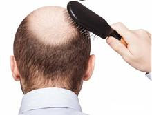 High quality 99% pure minoxidil powder, Treat hair loss,hair growth