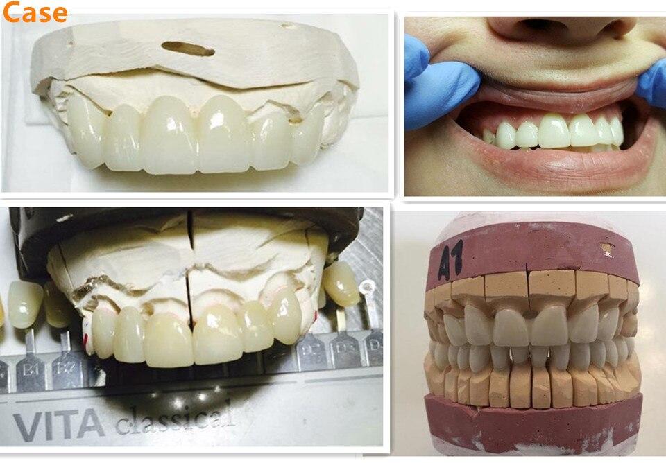 Bloco dental do ht da zircônia para o circuito completo