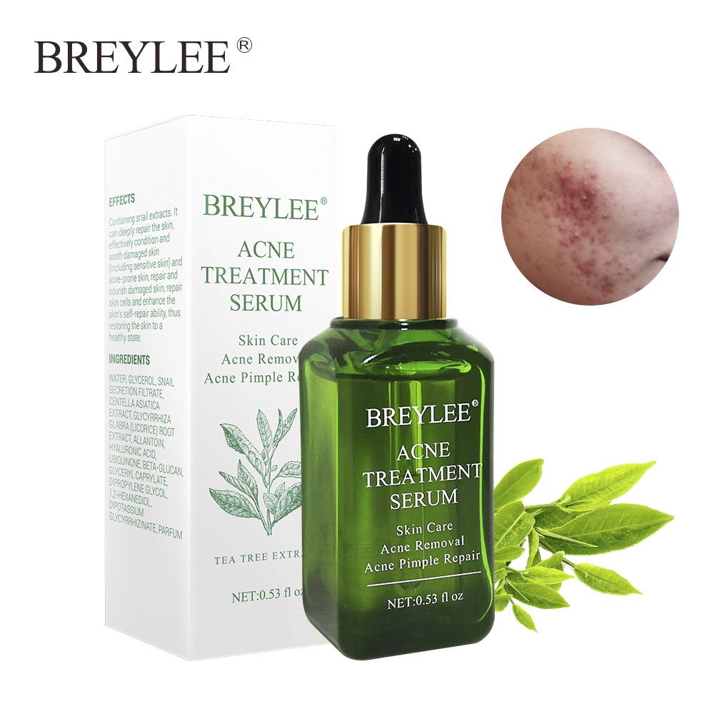 BREYLEE Acne Treatment Serum Facial Essence Anti Acne Scar Removal Cream Face Skin Care Whitening Repair Pimple Serum