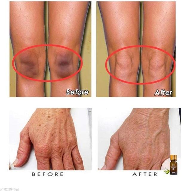 Ultra Brightening Spotless Essence Oil Skin Care Dark Spots Remove Ance Burn Strentch Marks Scar Removal Brightening US Stock 4